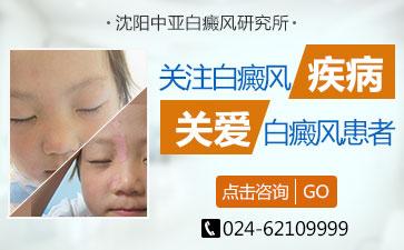 眼周的皮肤白斑怎么治疗